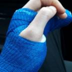 gebrochener Ringfinger